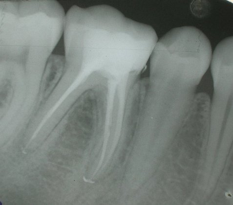 endodoncia rotatoria, especialidades